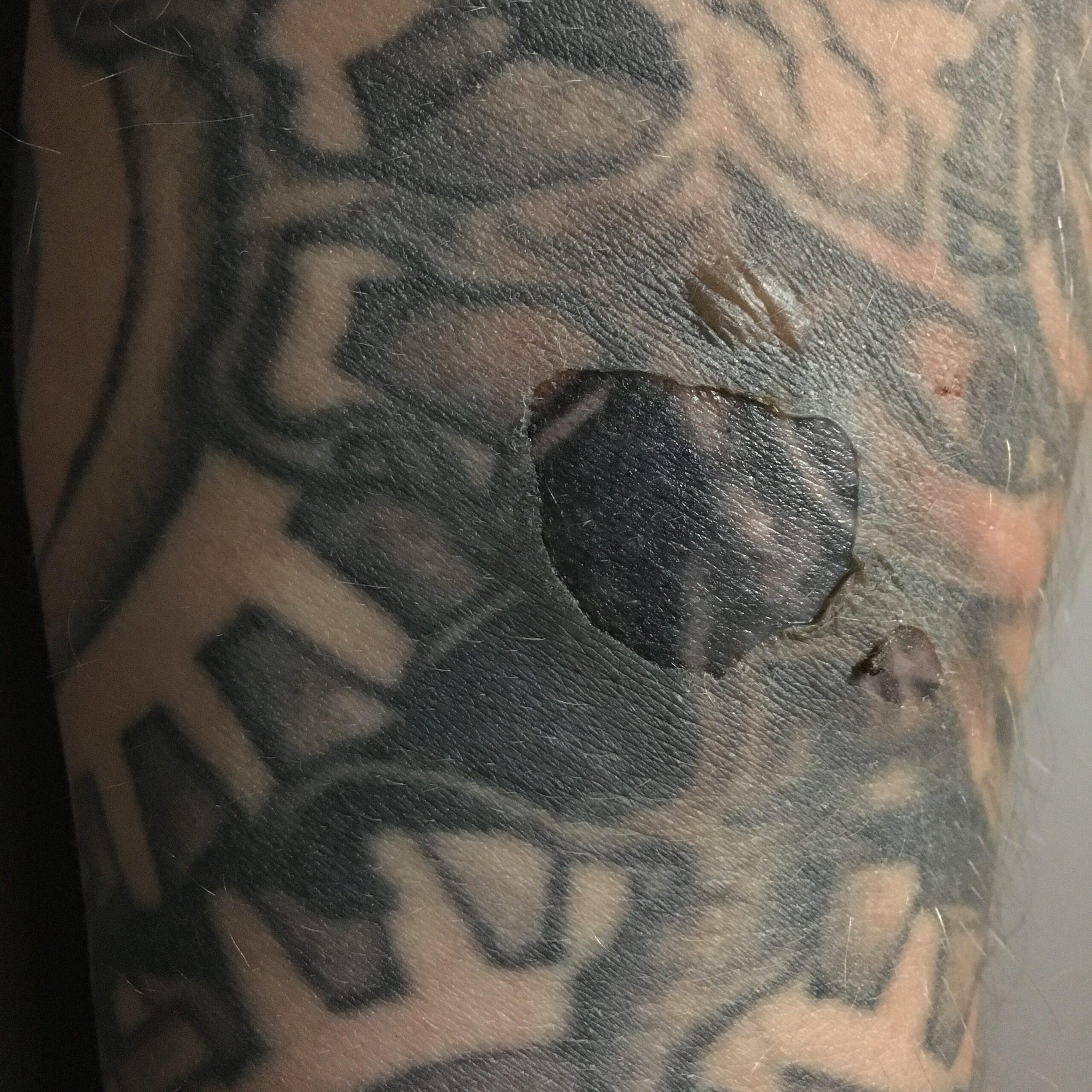 oparzenie tatuażu